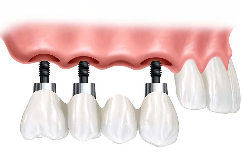 Quelle est la duree de vie d un implant centre dentaire - Duree de vie d un frigo ...